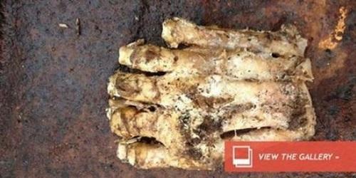 Tulang jari kaki misterius.(viva.co.id)