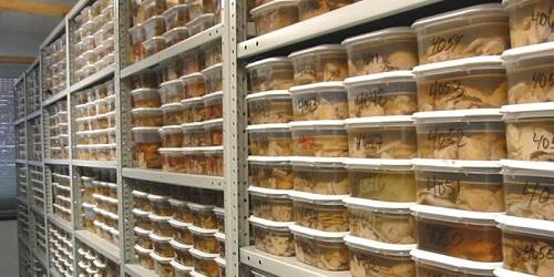 Harvard Brain Tissue Resource Centre.(sciencealert)