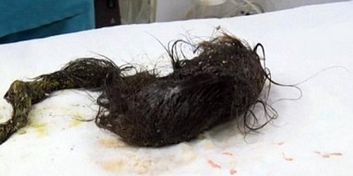 Rambut yang ditelan gadis penderita Sindrom Rapunzel.(Dailymail)